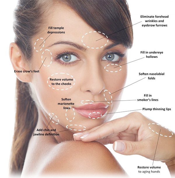 dermal fillers Dublin 15